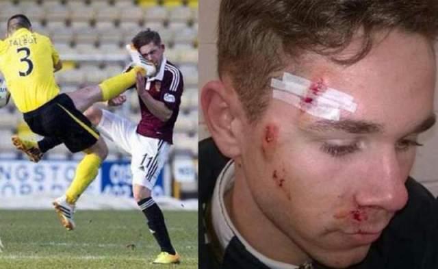 En Escocia se vio una de las peores patadas que se recuerde en el partido entre Livingston y Hearts donde Jason Talbot le enterró todos los tapones de los tacos en la cara a Sam Nicholson. Lo más increíble es que el árbitro no expulsó a Talbot por una agresión que merecía hasta algo más. Sam mostró su rostro herido tras el partido.